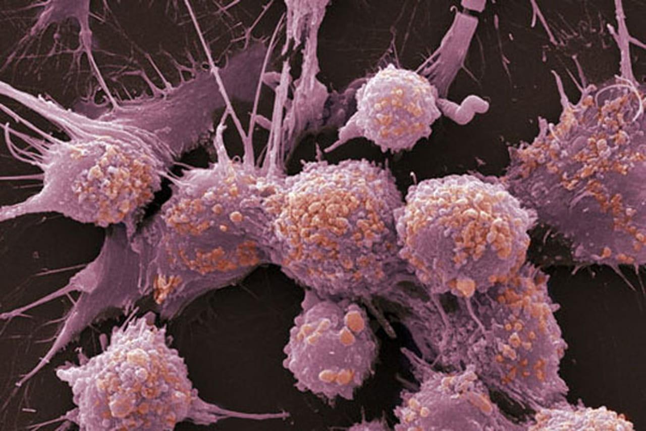 نتيجة بحث الصور عن السرطانات