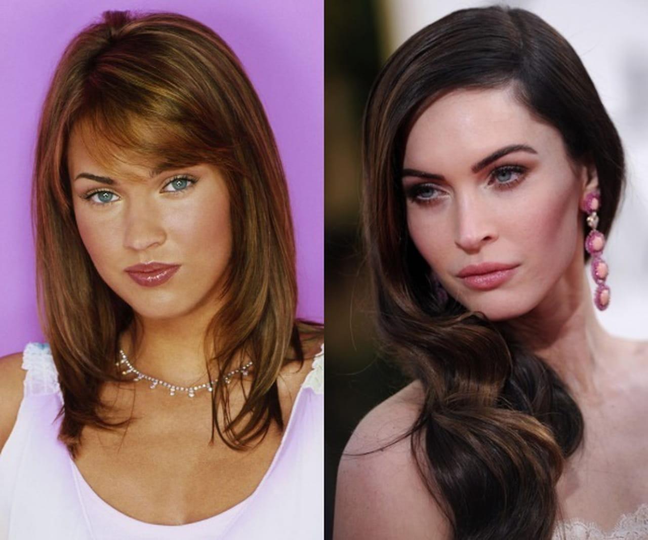 فنانات عالميات قبل وبعد عمليات التجميل