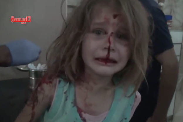 Risultati immagini per ferita bambina in siria, chiama papà